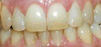 At Home Teeth Whitening, before picture