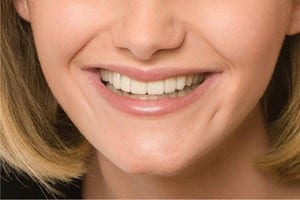 snap-on-smile-after