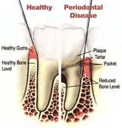 diagram-of-periodontal-cleaning-maintenance