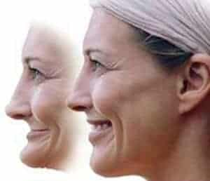 Image of a woman before and after the affects of facial collapse