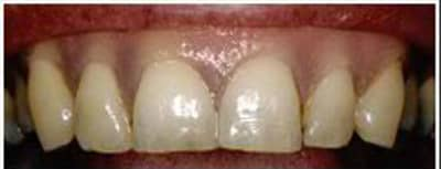 healthy gums after treatment