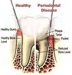 diagram of healthy gum and bone next to diseased tooth with plaque tartar periodontal pocket and reduced bone levels