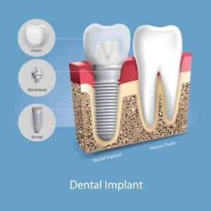 Illustration of a dental implant next to a natrual tooth