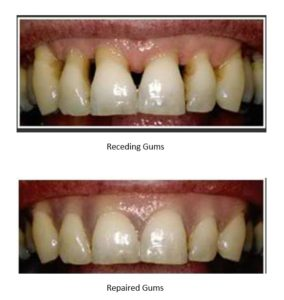 Before and After Receding Gums