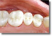 A photograph of the same teeth pictured above with the amalgam replaced with mercury-free composite fillings.