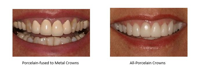 two types of crowns. Left: porcelain fused to metal. Right: all-porcelain