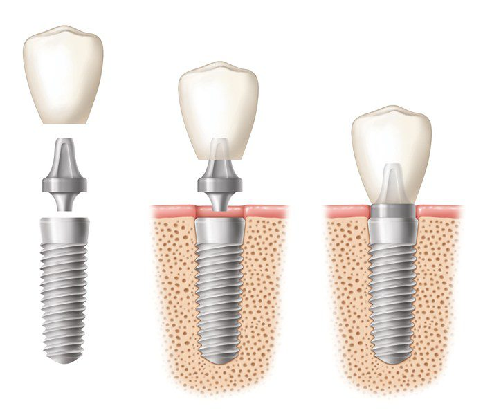 Three side by side images of dental implants with their crown being placed.