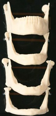 dental jaw models demonstrating the progression of facial collapse