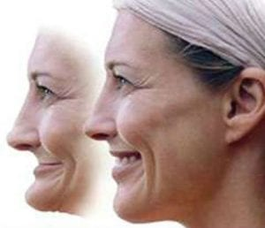 before and after facial collapse